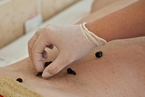 Гирудотерапия целлюлита