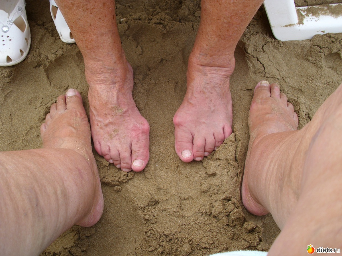 Фото ног старух 2 фотография