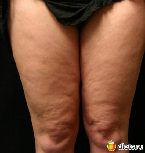 Фото жирных ног, двое трахают бабу в лифте