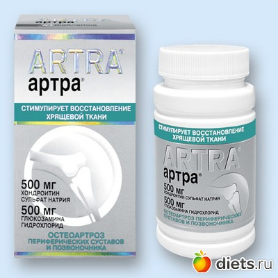 Мой опыт лечения артроза