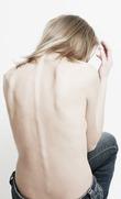 «Модная» болезнь – анорексия