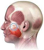 Постизометрическая релаксация жевательных мышц: корректируем овал лица