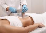 Криолиполиз: особенности процедуры, плюсы и минусы