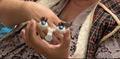 механизм глазок